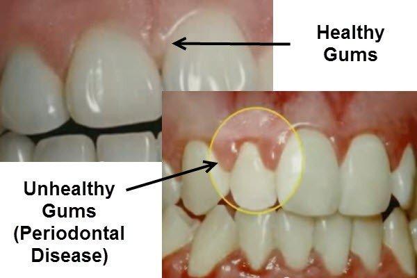 How Common is Gum Disease?