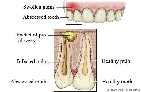 Abscessed Tooth Treatment Calgary NW