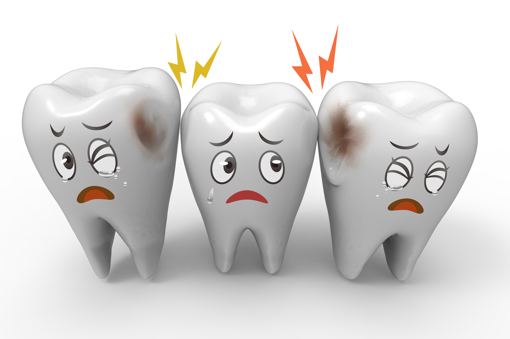 How Can I Prevent Cavities / Tooth Decay?