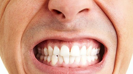 How To Stop Teeth Grinding? Causes and Treatments