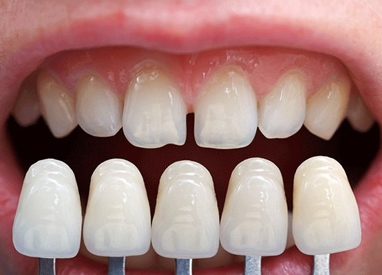 When to Consider Dental Veneers?