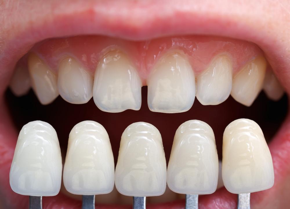 Life Span of Dental Veneers