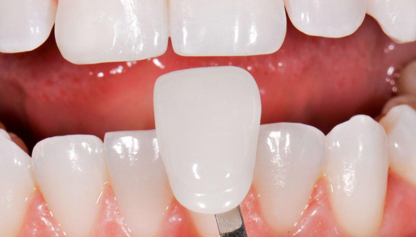 Tips To Take Care of Dental Veneers?
