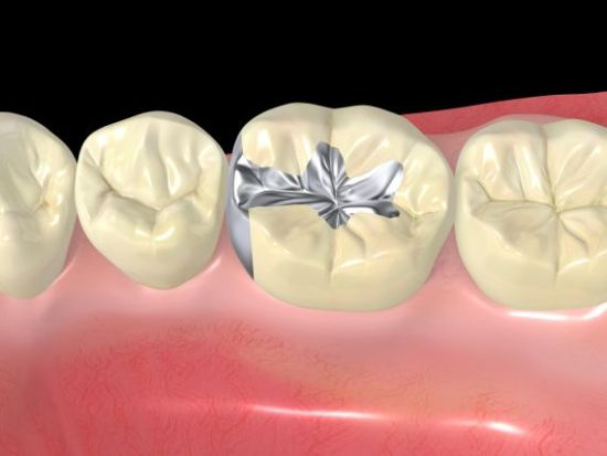 Facts About Dental Sealants