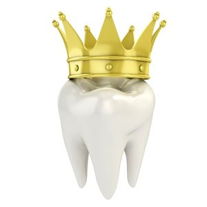 Taking Care of Temporary Dental Crown