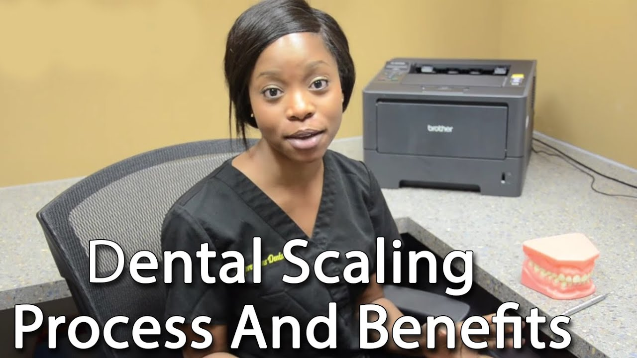 Dental Scaling Process And Benefits