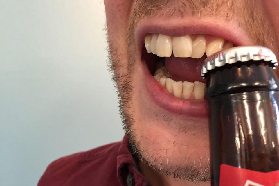 Bad Habits That Destroy Smile