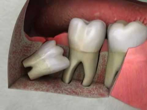 Some Facts About Wisdom Teeth