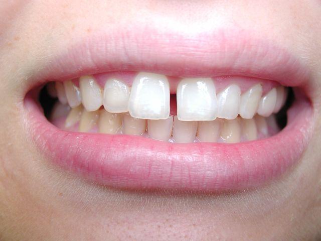 How to Fix Gap between Front Teeth?