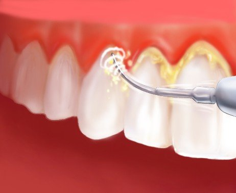 Is Deep Cleaning Good or Bad for Gum Disease?