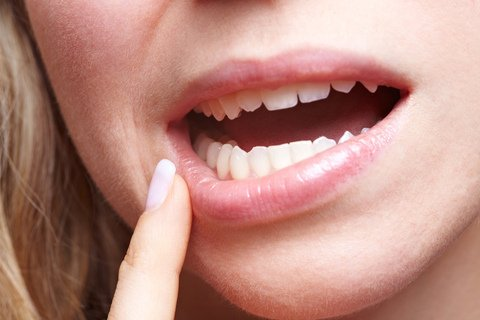 Oral Health Tips for Fighting Gingivitis