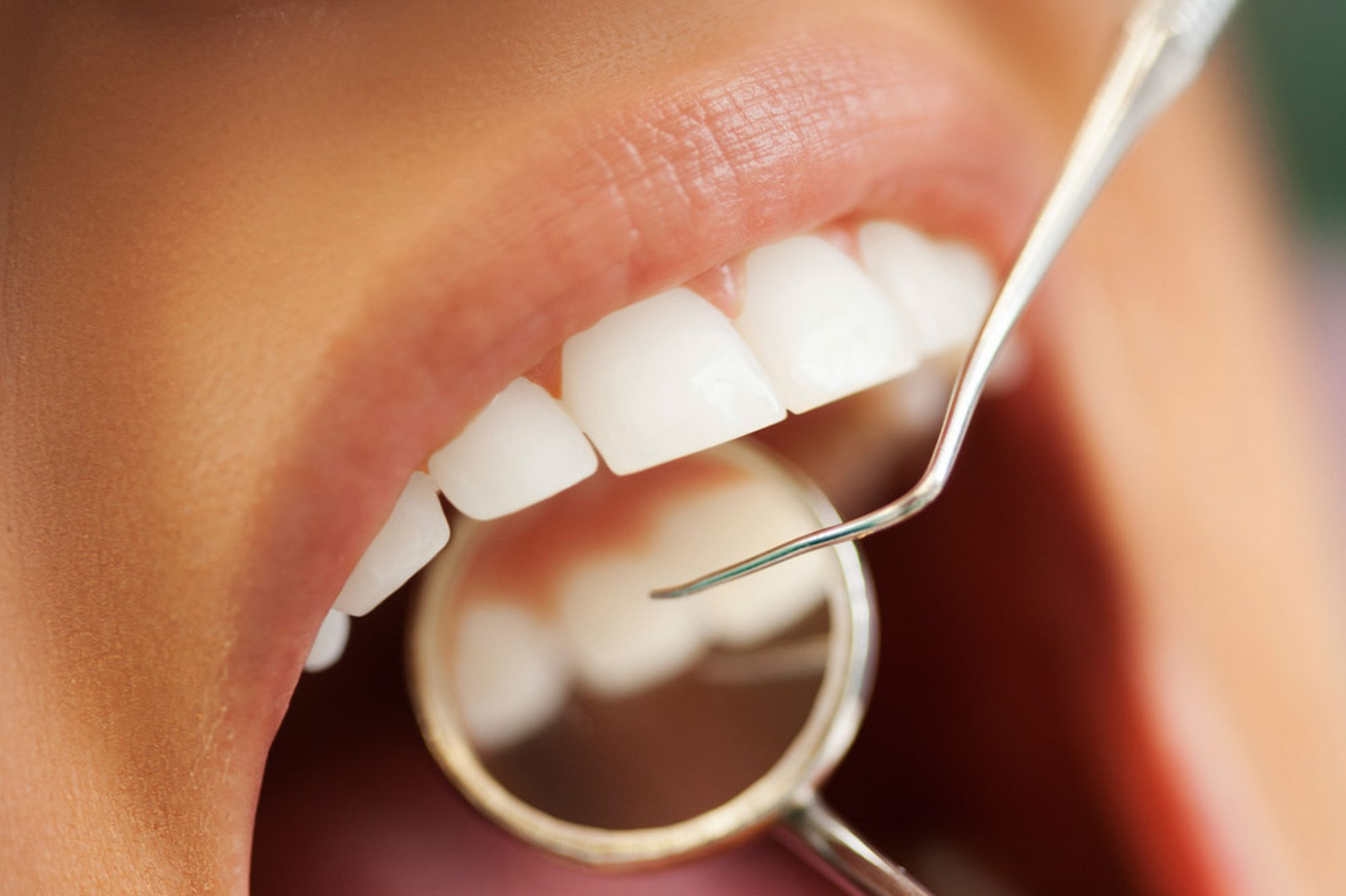 Beyond Teeth: What's Inside Your Mouth?