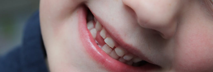 Read more about the article Reducing The Risk of Tooth Loss