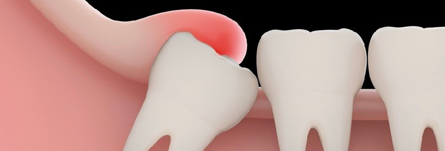 Impacted Wisdom Teeth and Its Warning Symptoms