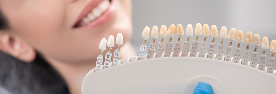 The Advantages & Disadvantages of Dental Veneers