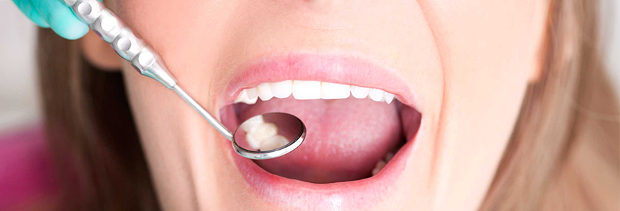 Read more about the article Tips to Reduce Tooth Sensitivity