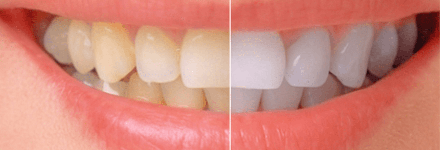 Different-Types-of-Tooth-Discoloration-and-Their-Treatment
