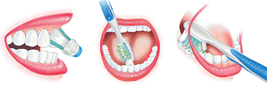 Five Oral Hygiene Practices You Might Be Doing Wrong