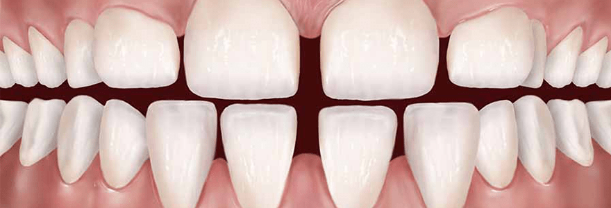 Gaps Between Teeth: Causes and Solutions