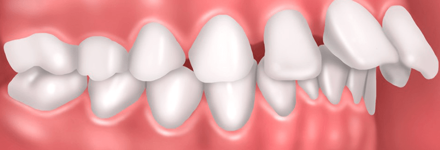 Reasons You Have Misaligned Teeth
