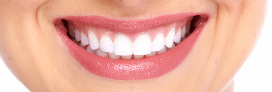 Restore Your Smile With Cosmetic Veneers
