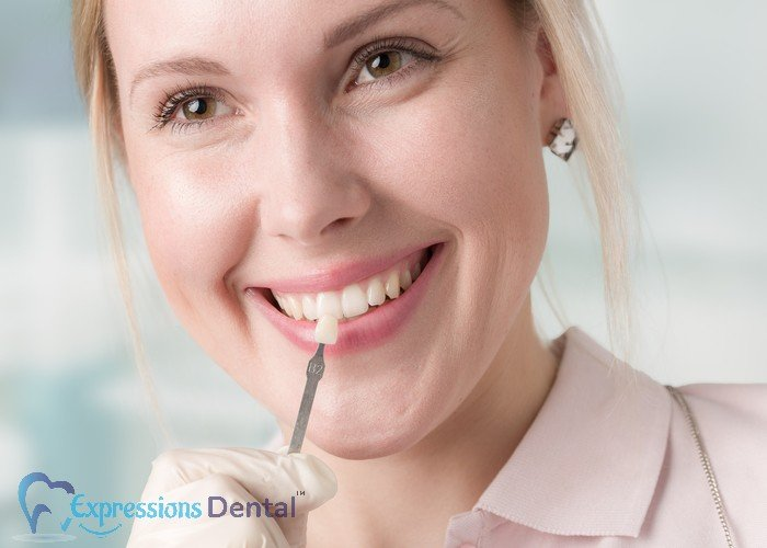 Some_Essential_Things_You_Might_Not_Know_About_Dental_Veneers0A_700x500