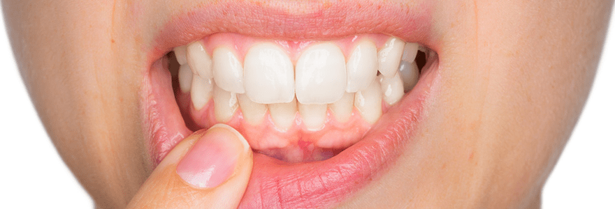 Read more about the article How To Soothe Sore Gums?