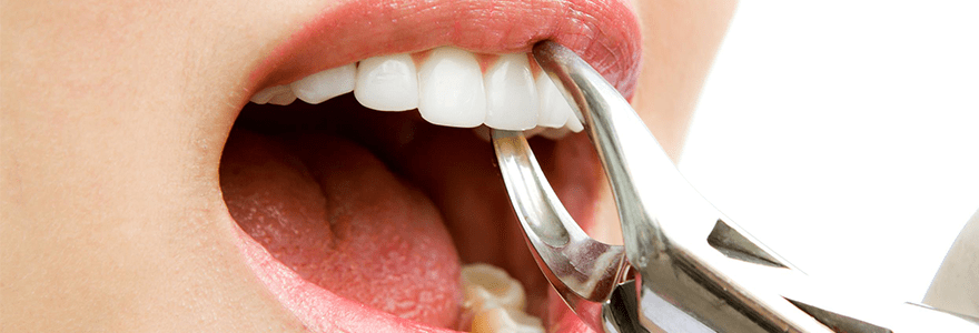 Top 3 Reasons For Teeth Extraction