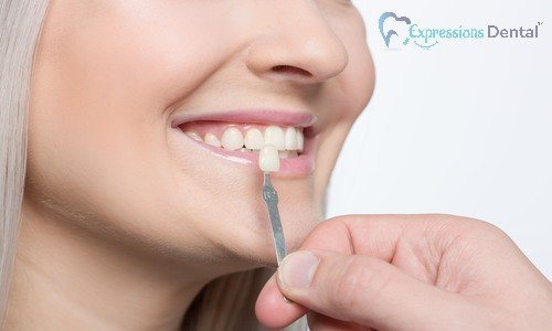 Ways_Porcelain_Veneers_Can_Enhance_Your_Smile_500x300-1