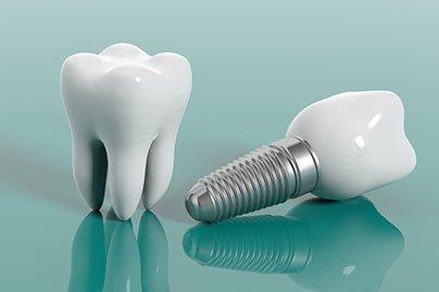 dental-implant-thumbnail