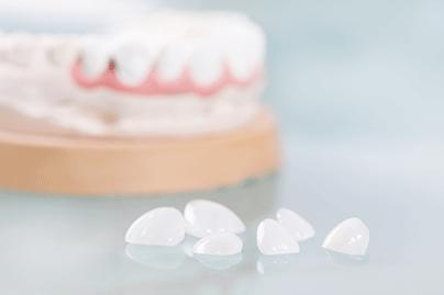 dental-veener-thumbnail