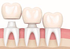 dental-bridge-thumbnail-image-270x191-min