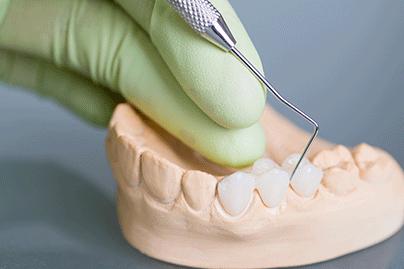 dental-bridge-thumbnail-image-2