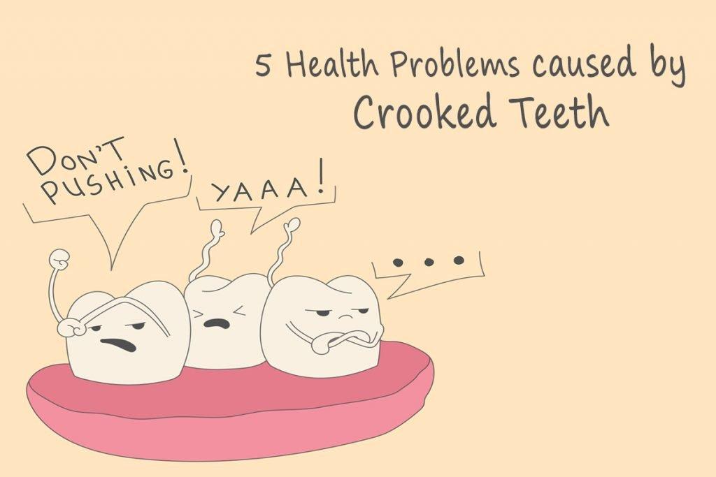 Crooked-Teeth-Treatment